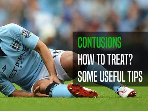 How to handle contusions